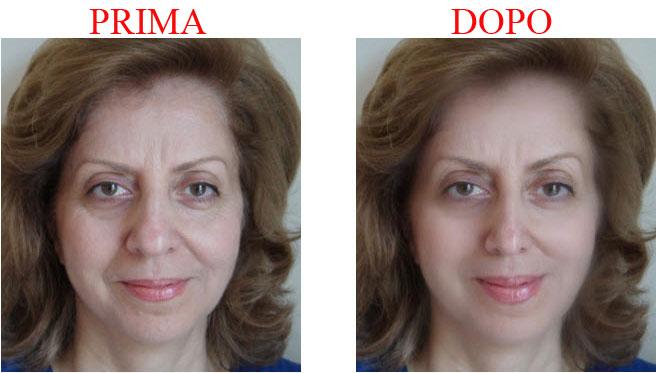lifting-viso-fronte-occhi