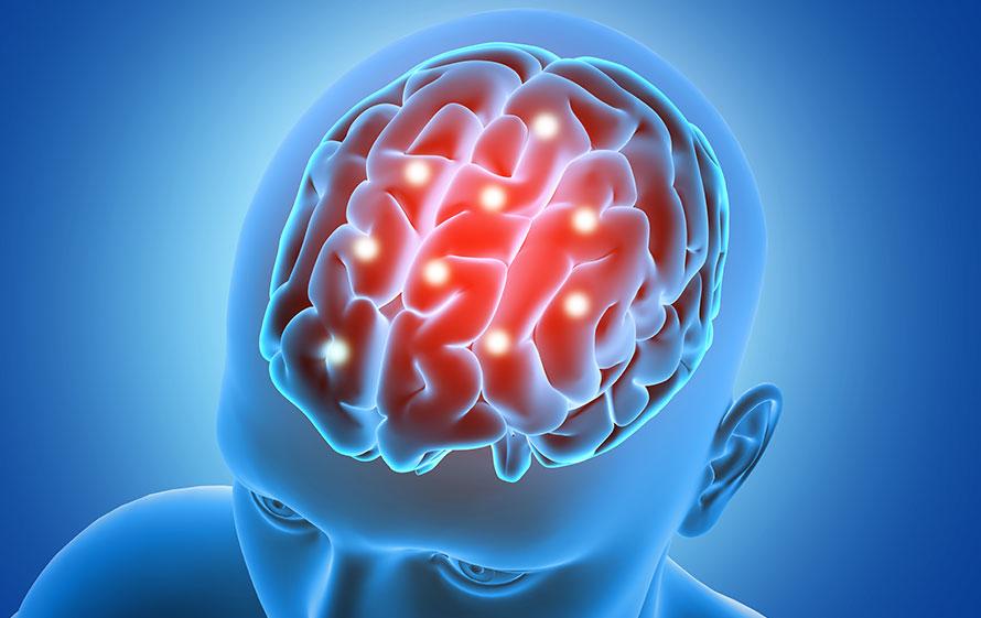 L'efficacia della Stimolazione Magnetica Transcranica ripetitiva contro le dipendenze e la depressione